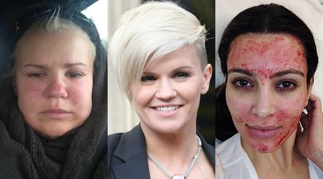akibat-facial-darah